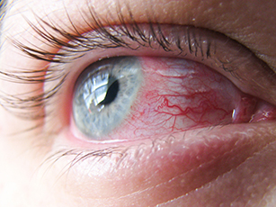 Contact Lenses for Giant Papillary Conjunctivitis