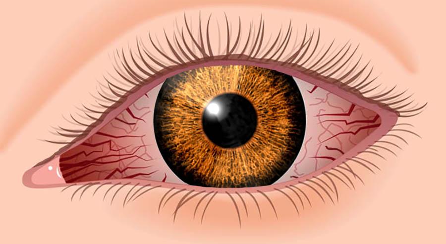 Seeing Red - Reasons Your Eyes Get Bloodshot